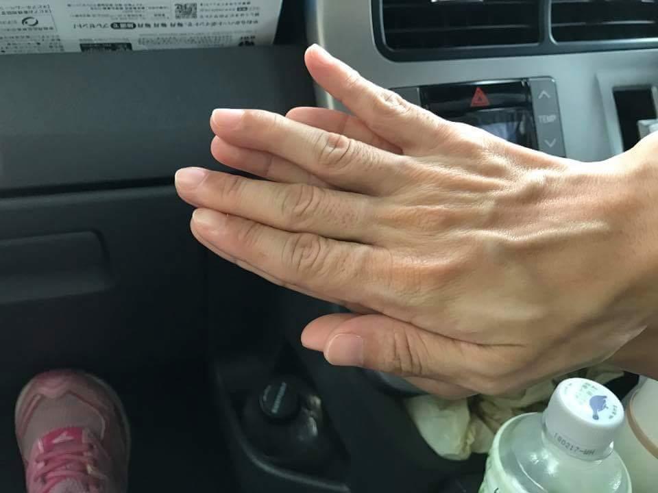変形をおこさないための突き指の整復